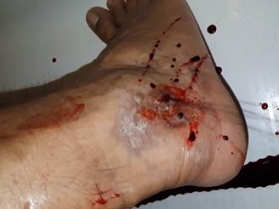Кровотечение из варикозных вен