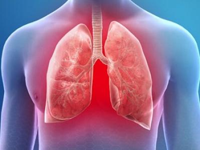 Тромбоэмболия лёгочной артерии - ТЭЛА